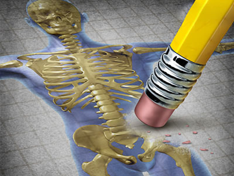 Kemik Erimesi (Osteoporosis)