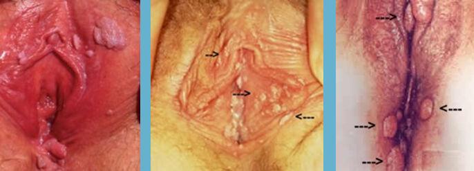 Kadında vulvada, vajina girişinde ve dış genital organda yerleşmiş papillomlar