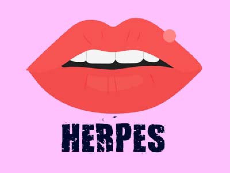 HERPES (UÇUK) ENFEKSİYONLARI